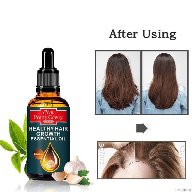 Garlic Hair Growth Oil Anti Hair Loss Hair Regrowth Herbal Essential Oil Hair Growth Products Shopee Philippines