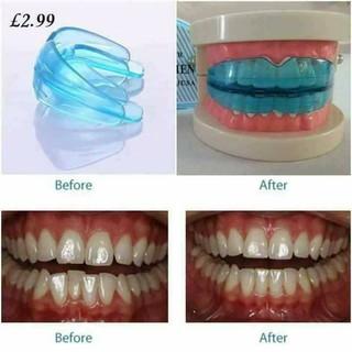 Buy 1 take 1 teeth trainer alignment silicon retainer shopee like 405 solutioingenieria Choice Image