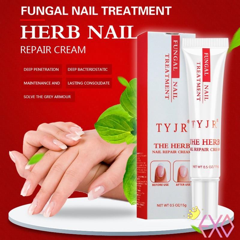 Nail Fungus Oil Onychomycosis Paronychia Anti Fungal Nail Infection 15g