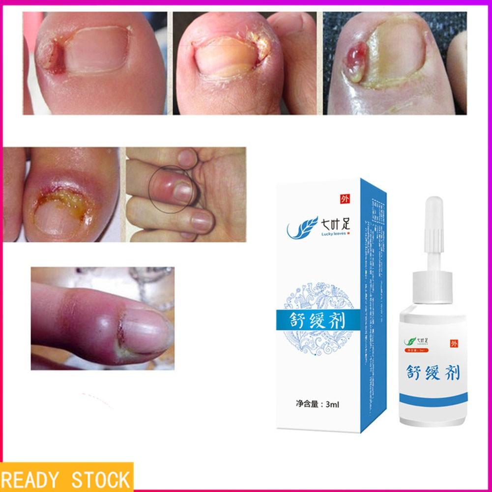 Liquid Medicine For Paronychia Onychomycosis Nail Fungus Cream Nail Disease Ointment Nails Nails