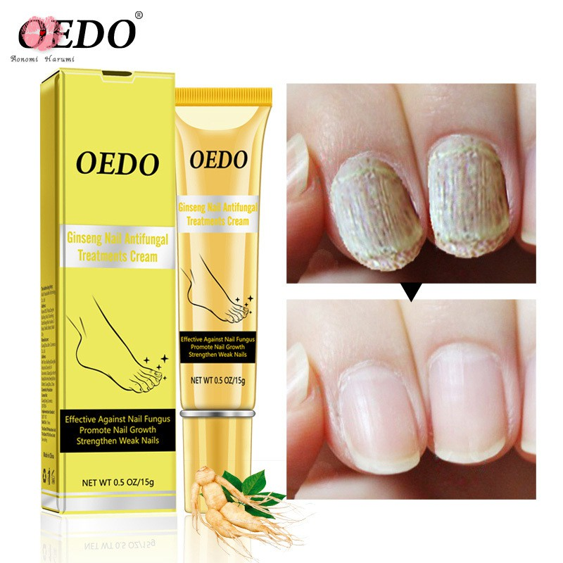 Ginseng Nail Antifungal Treatment Cream Herbal Removal Fungus Toe Anti Infection Foot Care Ointment