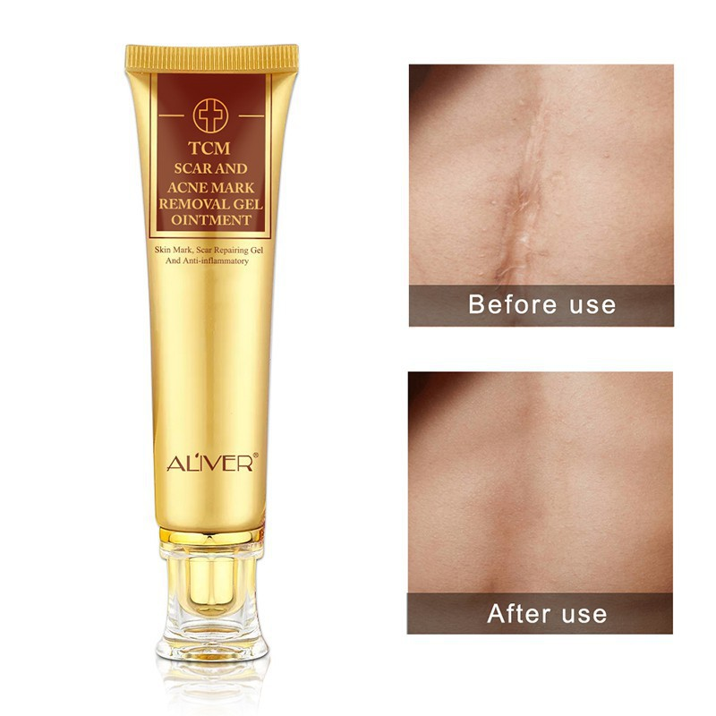 Scar Removal Cream Skin Repair Face Cream Acne Spots Treatment
