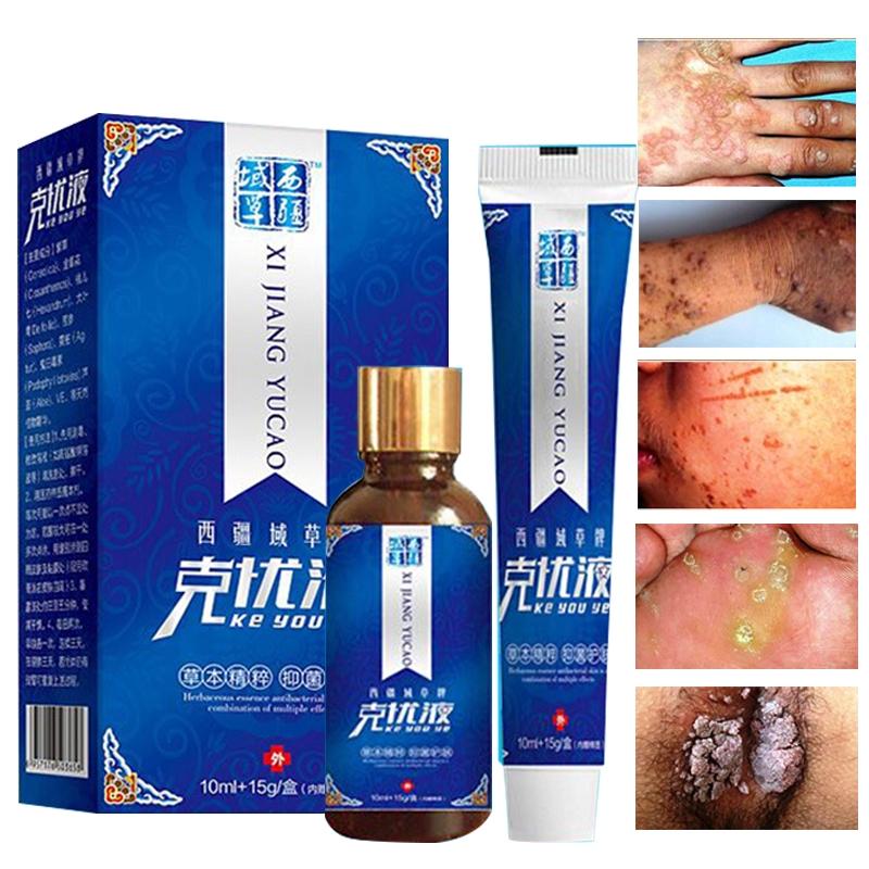 genital warts removal cream