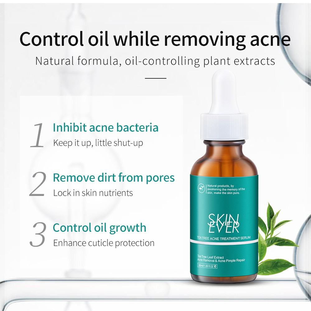 Skin Ever Tea Tree Acne Treatment Serum Anti Acne Oil Control Original  Essence Cruelty Free Repair Pimple 30ml | Shopee Philippines
