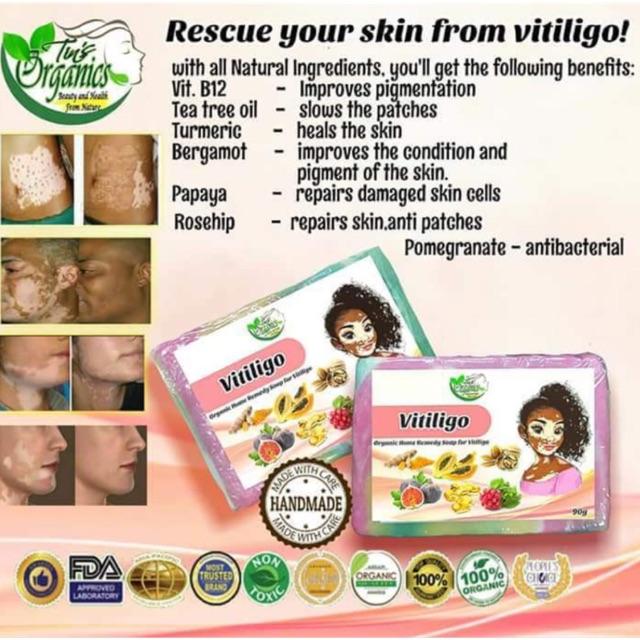 VITILIGO Soap by Tin's Organics