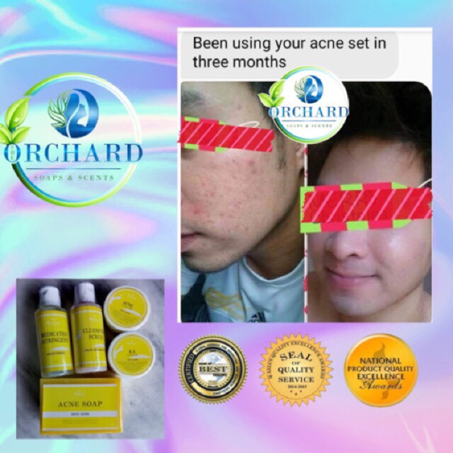 Acne Treatment Set Acne Prone Skin Shopee Philippines