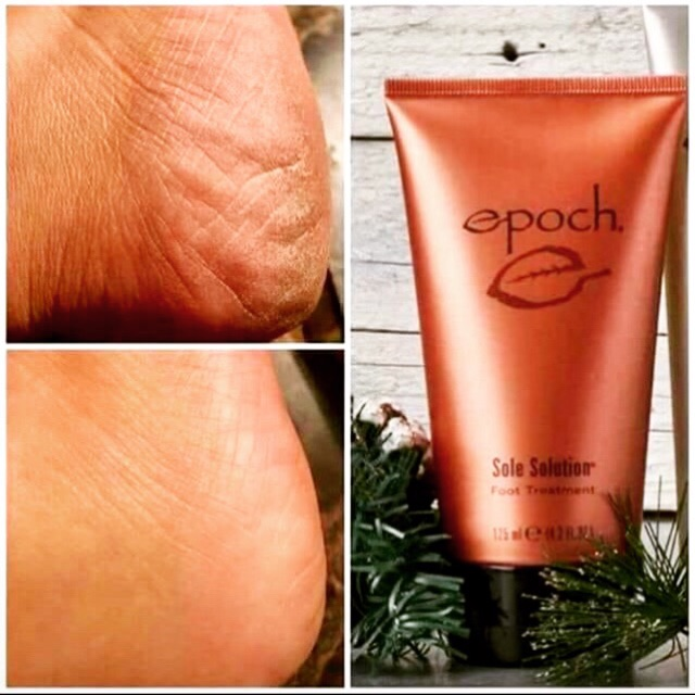sole solutions foot treatment