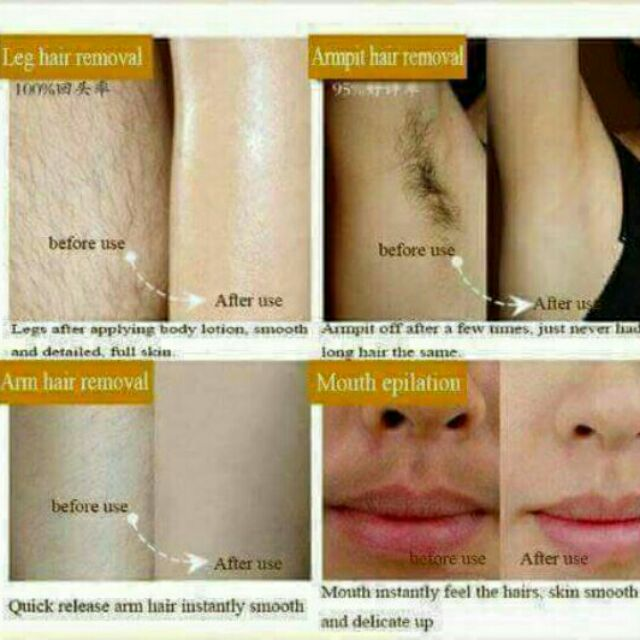 Pil Aten Hair Removal Cream Painless Shopee Philippines