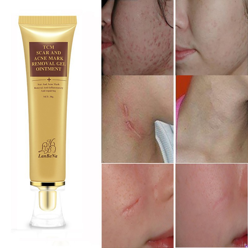 Exo ღ Lanbena Natural Tcm Scar And Acne Mark Removal Gel