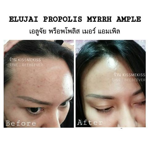 Elujai Propolis Myrrh Ampoule (New Packaging)   Shopee
