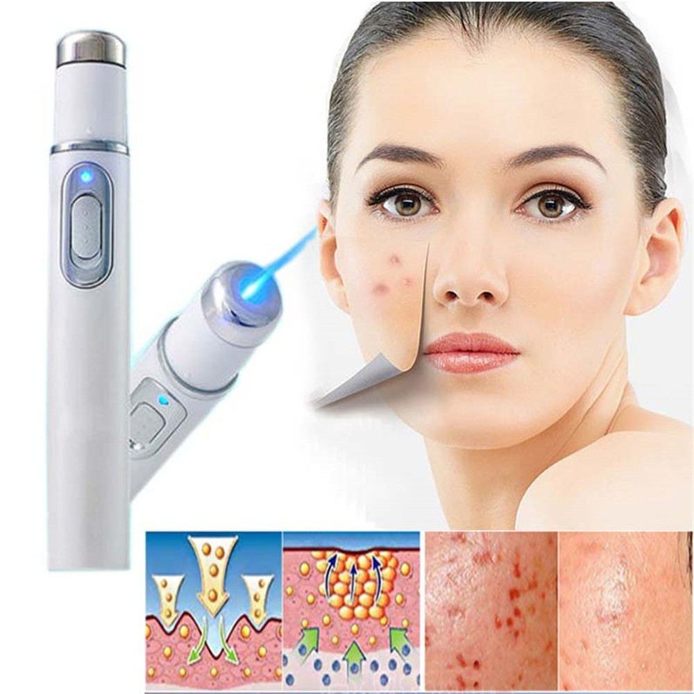 Beauty Device Face Skin Care Tool Blue Light Therapy Scar Remover Acne  Laser Pen | Shopee Philippines