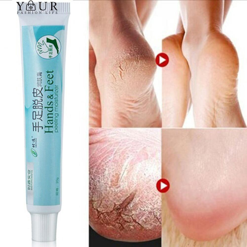 Your Hand Foot Crack Cream Dead Skin Remove Ointment