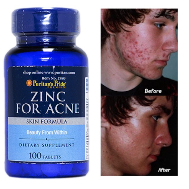 Puritan S Pride Zinc For Acne Shopee Philippines