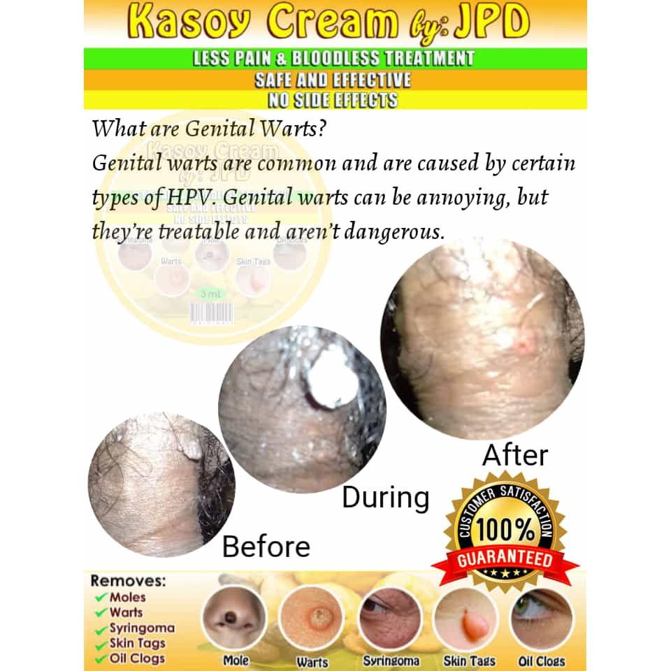 Papilloma removal cream, Buy Aldara - Aldara Cream (Imiquimod)