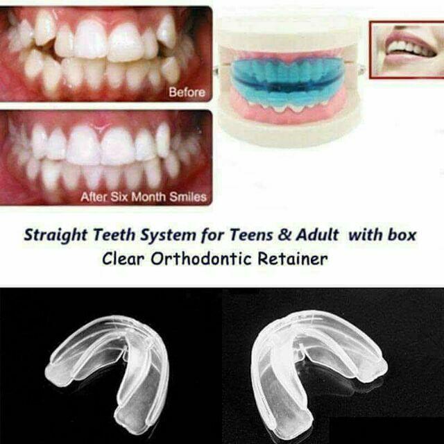 Silicone Teeth Retainer Alignment Trainer