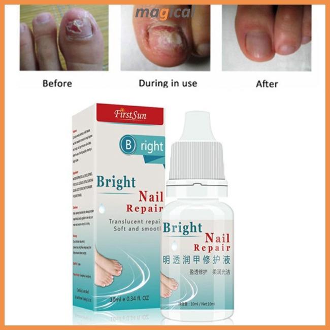 Nail Fungus Treatment Cream Onychomycosis Paronychia Anti Fungal Nail Infection Toe Nail Treatment